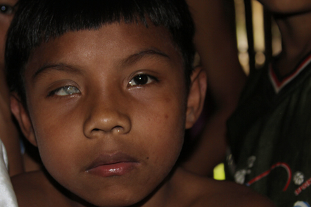 Many indigenous children have treatable and curable disabilities