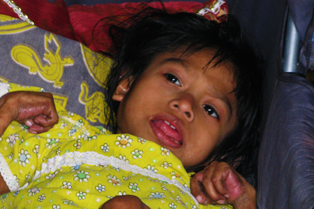 Iracsel has not received medical care because her family cannot afford the trip to the city
